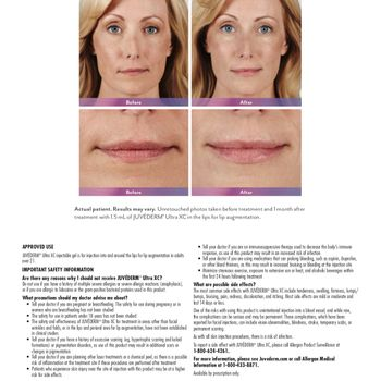 Juvederm Ultra XC Before and after