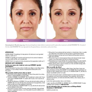 Juvederm XC before and after