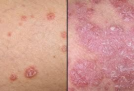 Effective Psoriasis Treatment